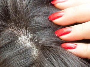 Vietnam hair-Tips to get rid of dandruff